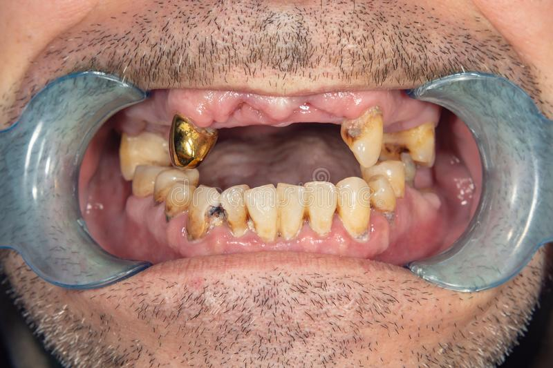 Rotte tanden, bederf en plaqueclose-up in een asocially zieke patiënt Het concept slechte hygiëne en gezondheidsproblemen royalty-vrije stock afbeelding