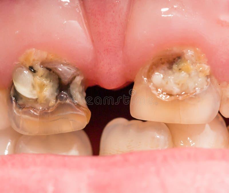 Rotte tanden Macro royalty-vrije stock afbeelding