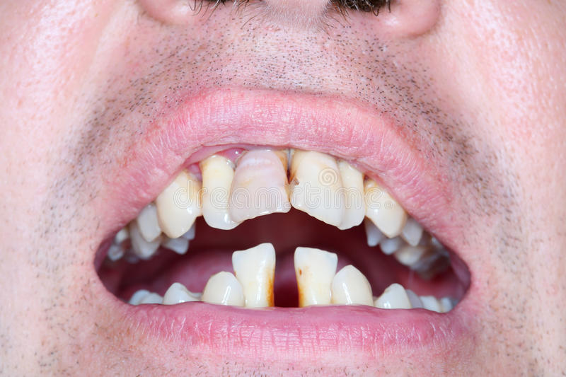 Rotten and crooked teeth of men stock photo