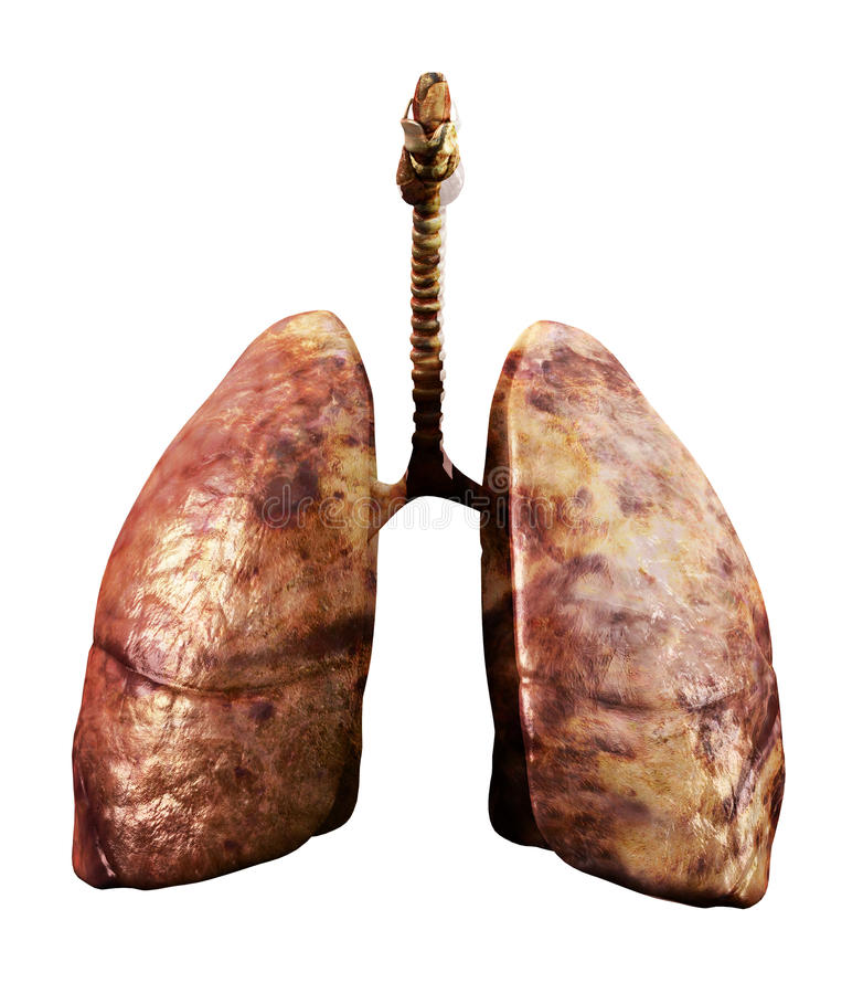 Rotten Lungs Royalty Free Stock Image