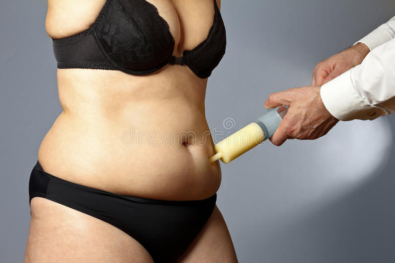 Rotund woman liposuction belly syringe royalty free stock images