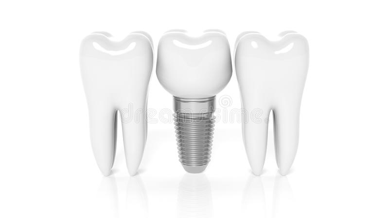 Row of teeth with dental implant vector illustration