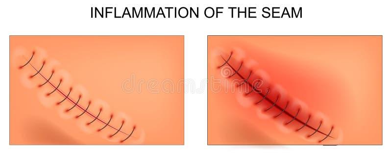 Rozognienie złącze po appendectomy ilustracja wektor