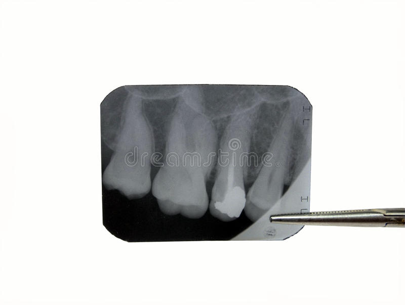 Download RTG stock photo. Image of practice, shadowgraph, cavity - 14857228