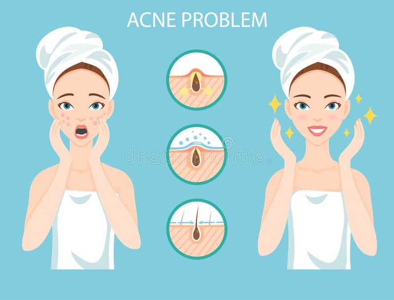 Rubbningen som är tonårig med kvinnligt ansikts- hudproblem, behöver att bry sig omkring: infographic av aknesjukdom och etapper  royaltyfri illustrationer