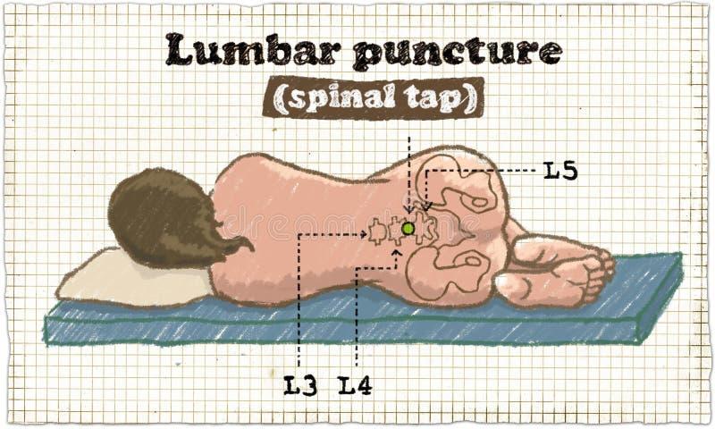 Ruggegraats Lumbale Punctuurillustratie op oud Document vector illustratie