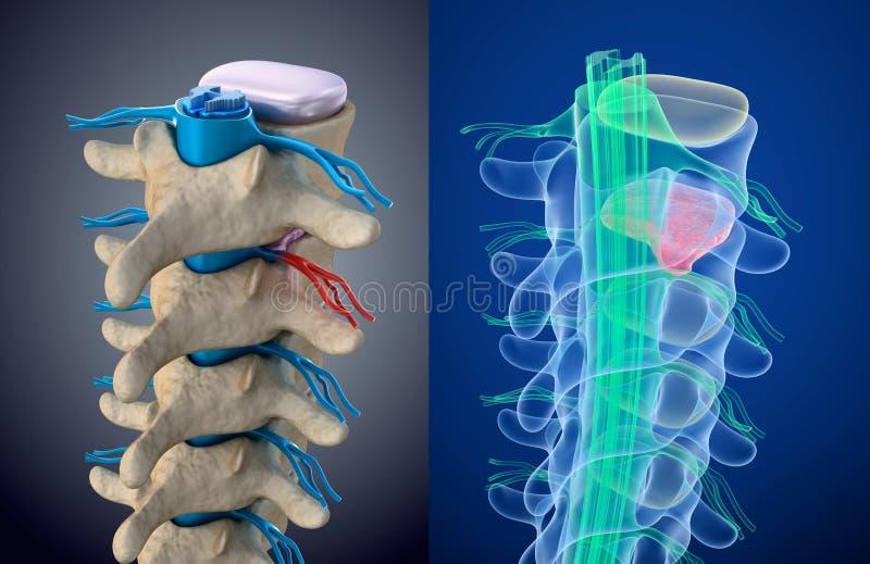 Ruggemerg onder druk van doende zwellen schijf Röntgenstraalmening Medisch nauwkeurige illustratie vector illustratie