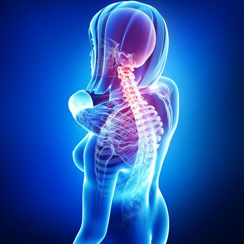 rugpijn in vrouwelijk lichaam vector illustratie
