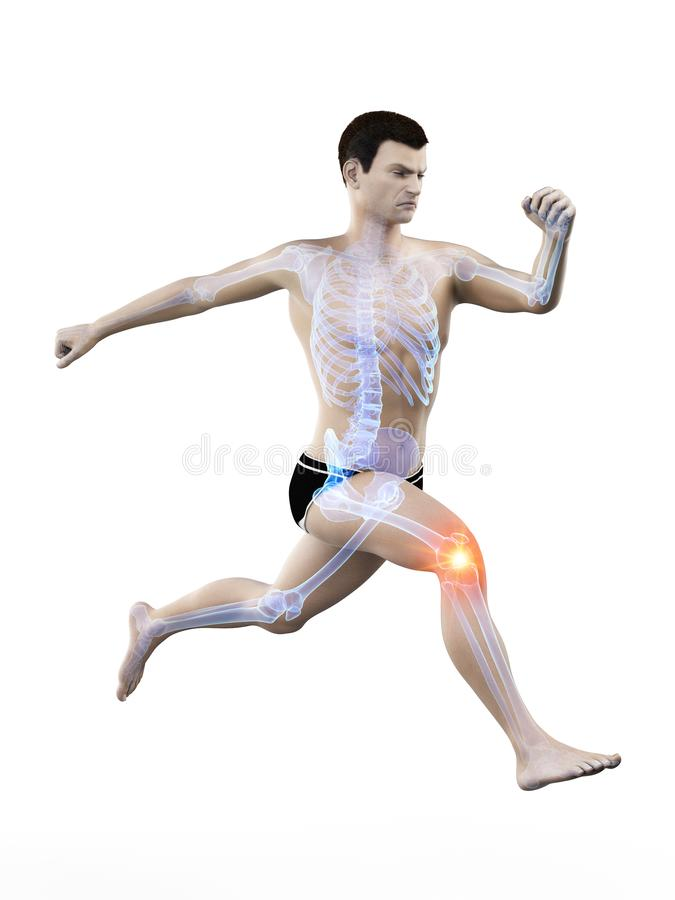 a runners painful kee vector illustration
