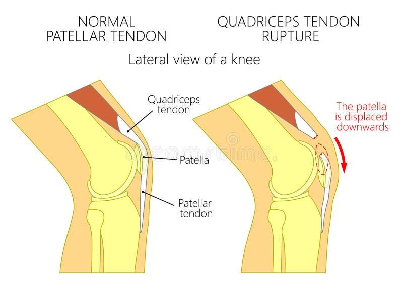 Rupture de tendon de problem_Quadriceps de genou illustration de vecteur