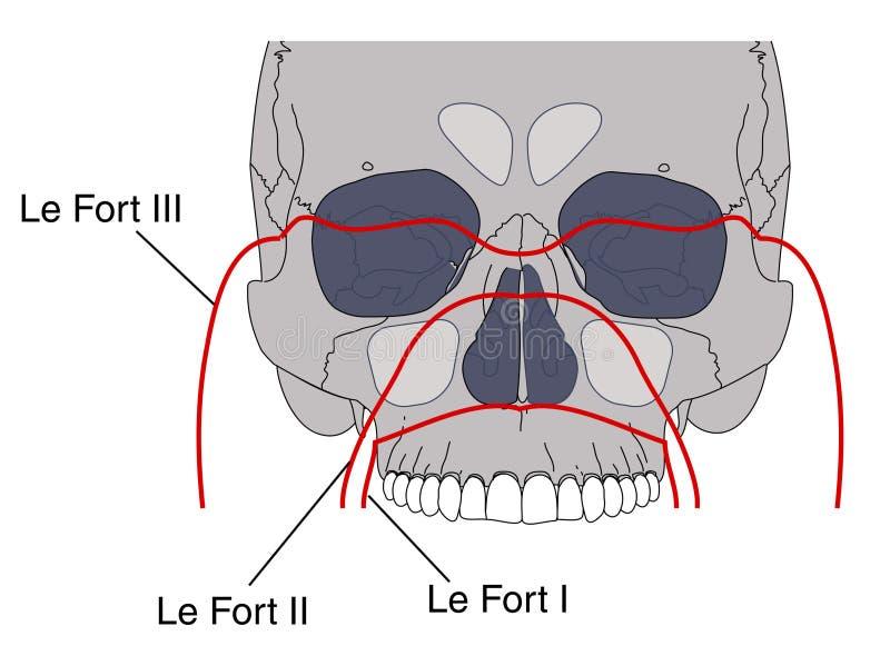 Ruptures faciales illustration de vecteur