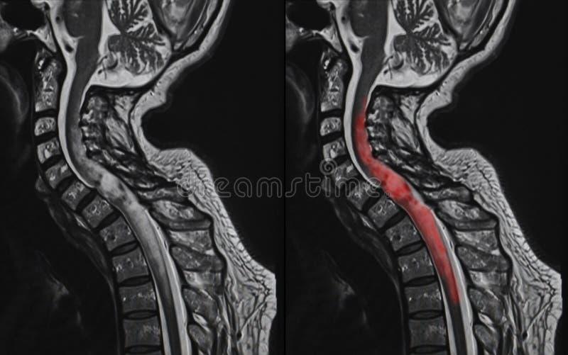 Ryggmärgtumör, MRI royaltyfri foto