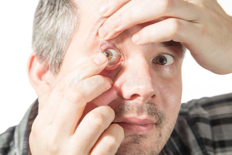 Sätta på en kontaktlins fotografering för bildbyråer