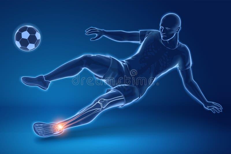 Sårad fotbollspelare i x-stråle royaltyfri illustrationer