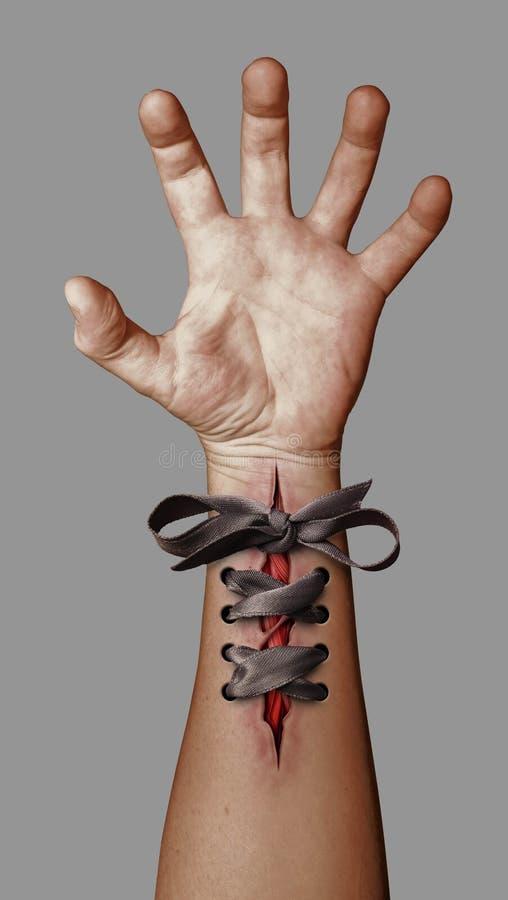 sårad hand royaltyfri bild