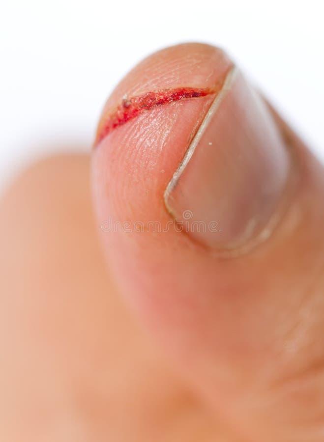 sårat finger arkivbilder