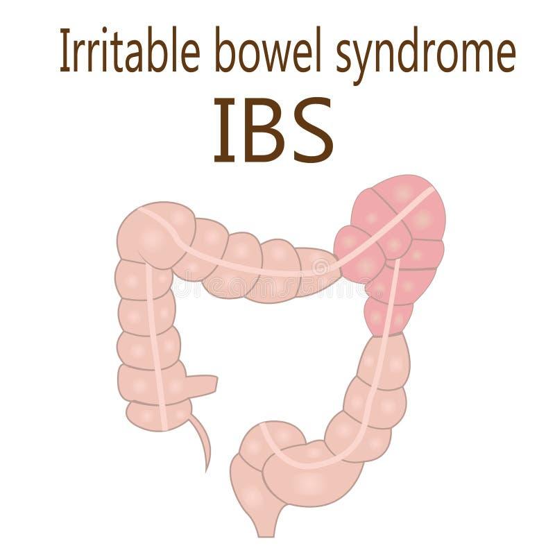 Síndrome de intestino irritable IBS en un intestino grueso ilustración del vector
