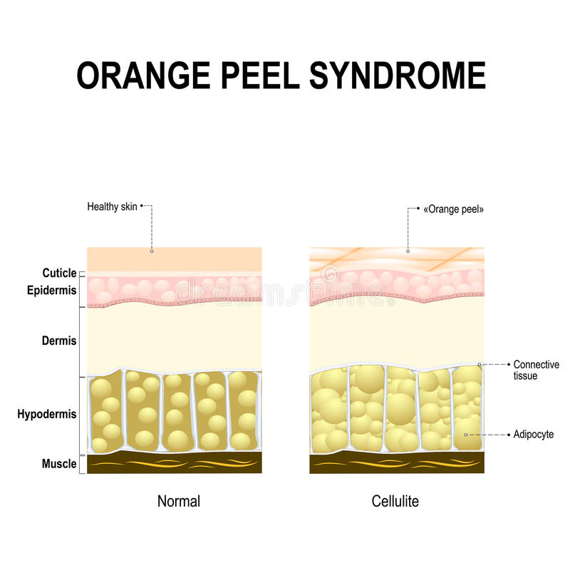Síndrome de las celulitis o de la cáscara de naranja ilustración del vector