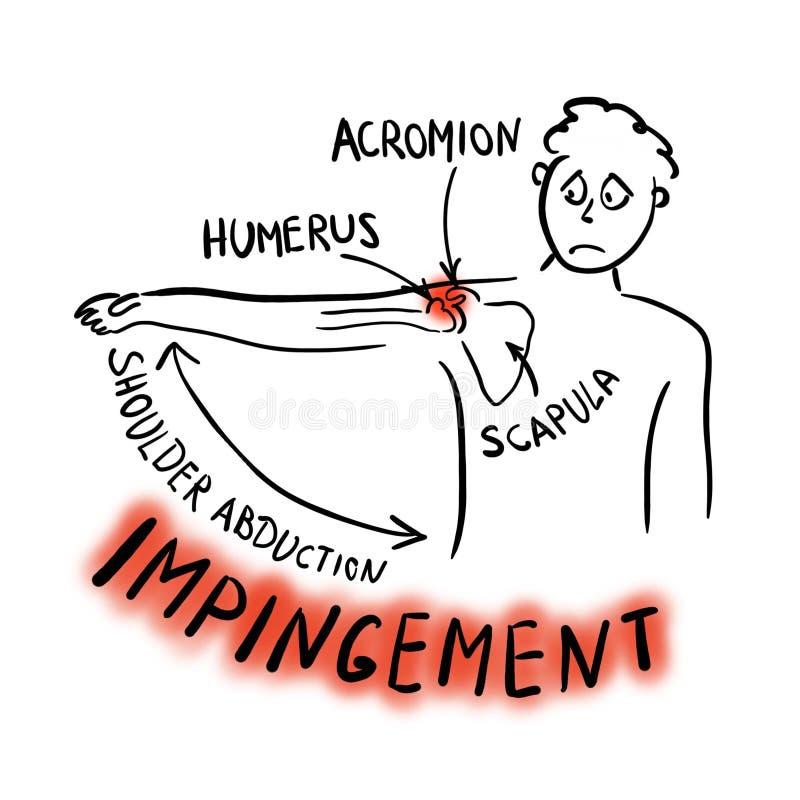Síndrome do choque do ombro Abducção dolorosa ilustração do vetor