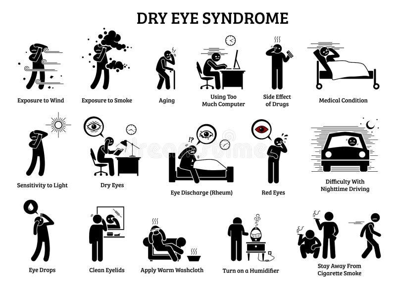 Síndrome do olho seco ilustração do vetor