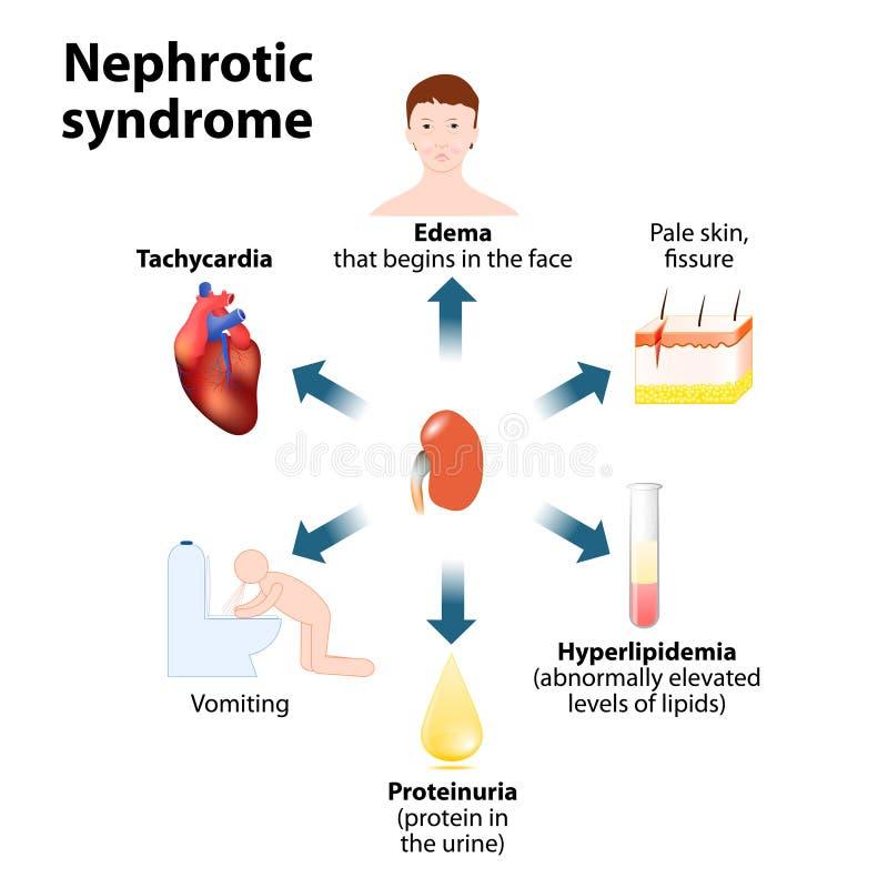 Síndrome Nephrotic ilustração royalty free