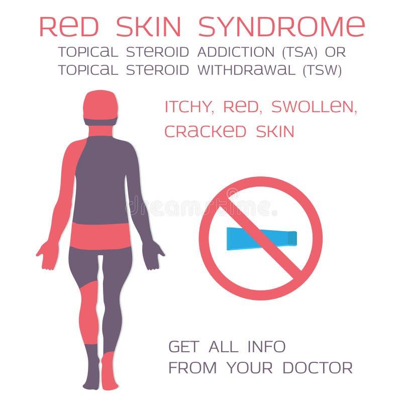 Síndrome rojo de la piel, retiro tópico de los esteroides o apego Eczema y esteroides ilustración del vector