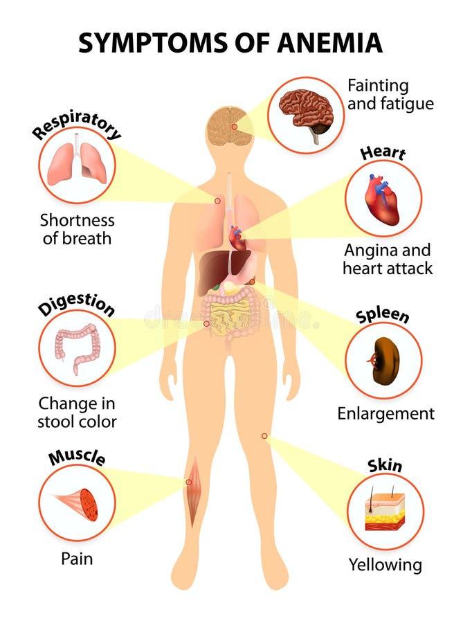 Síntomas de la anemia stock de ilustración