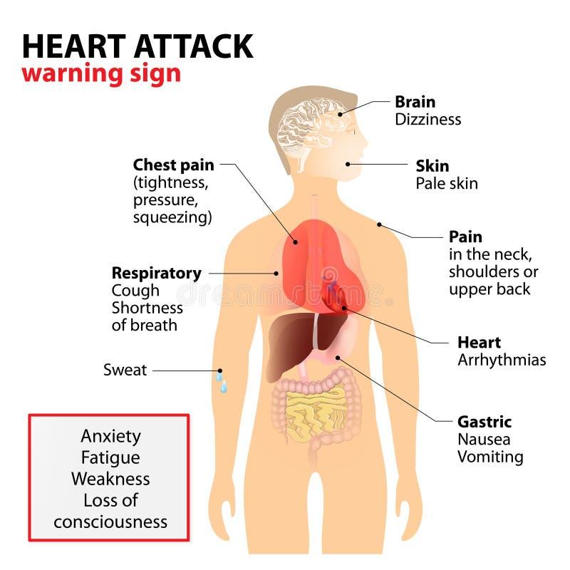 Síntomas del ataque del corazón ilustración del vector