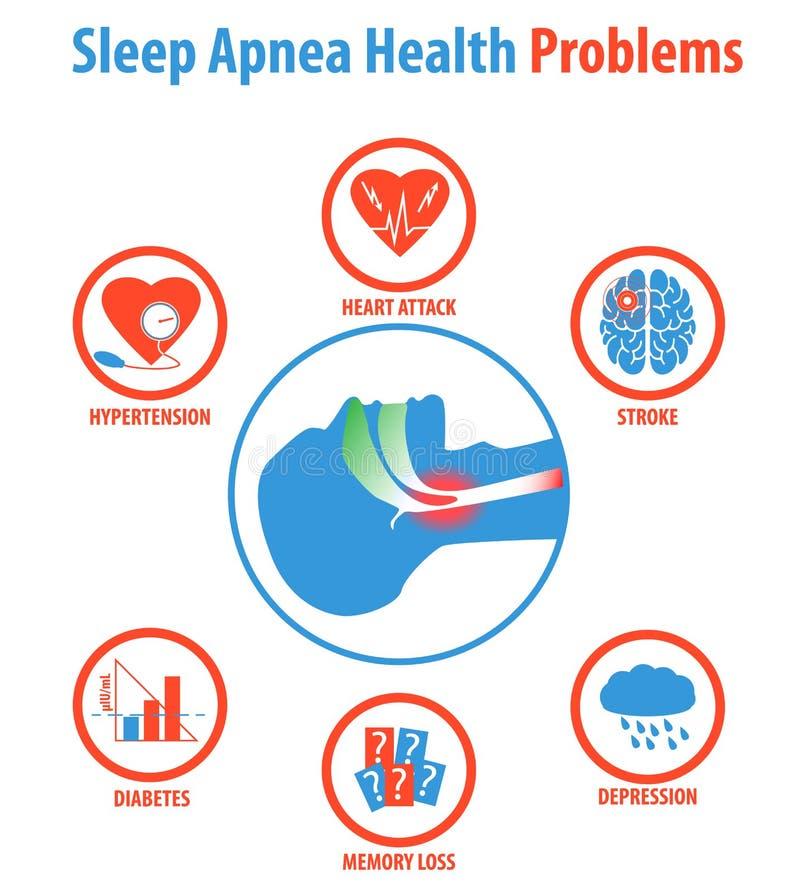 Sömnapnea: behandlingar, orsaker, tecken och hälsoproblem royaltyfri illustrationer