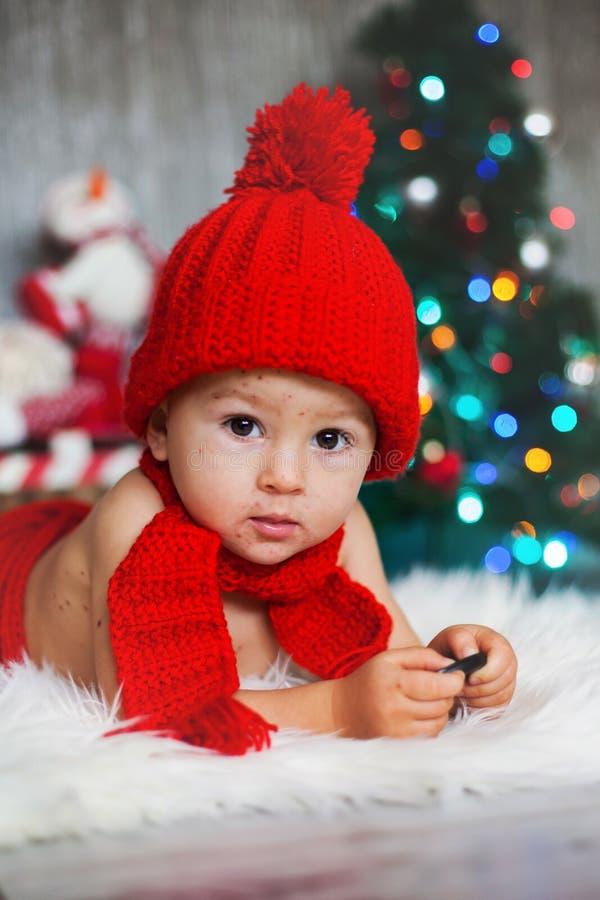 Söt litet barnpojke med vattkoppor, varicellazostervirus, med arkivbilder