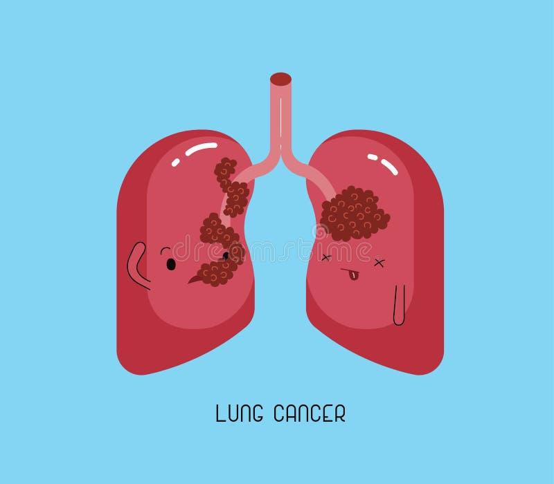 Słaby nowotwór płuc, charakter stomatologiczny royalty ilustracja