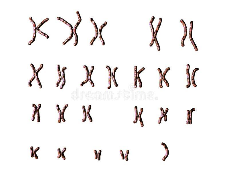 S-σύνδρομο του Turner karyotype ελεύθερη απεικόνιση δικαιώματος