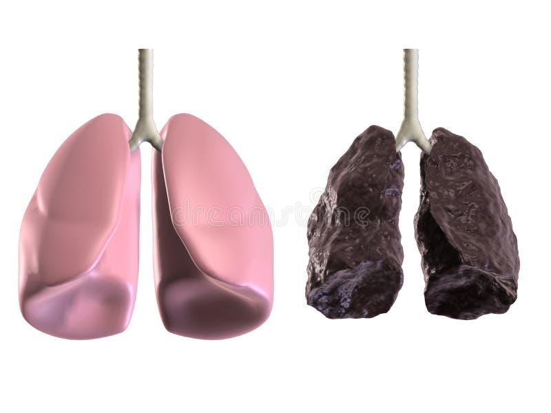 Saúde e lungss ruins ilustração stock