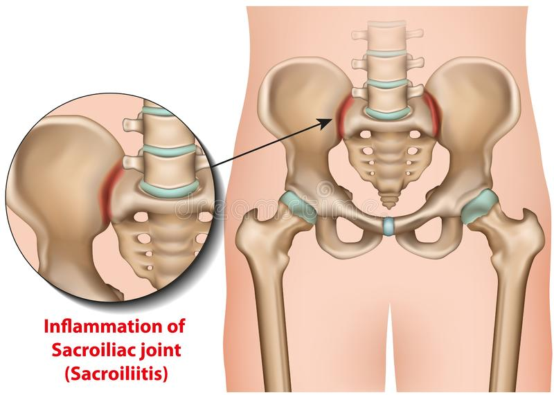 Sacroiliac joint inflammation 3d medical  illustration sacroiliitis. Eps 10 royalty free illustration
