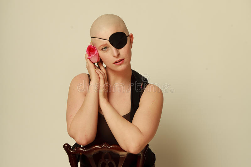 Sad bald girl with eye patch and Rose. Bald girl with an eye patch in the studio holding a rose to her face royalty free stock photography