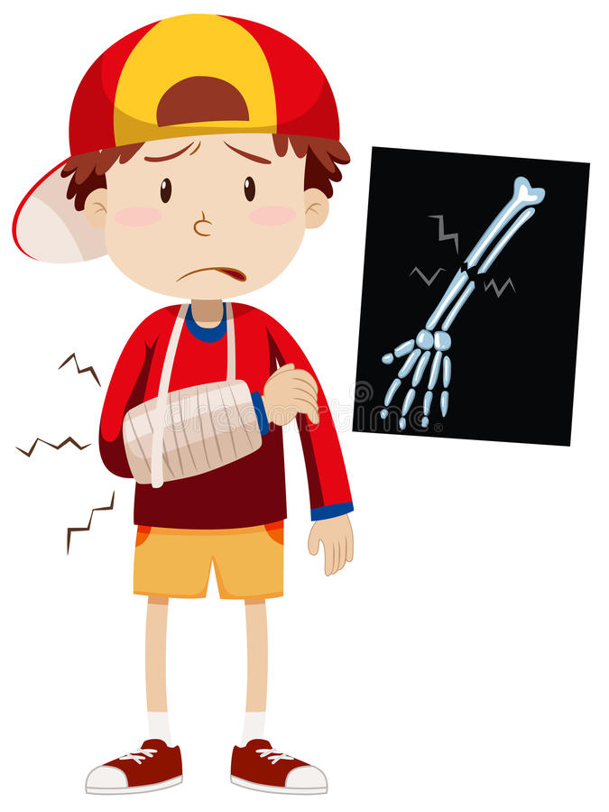 Sad boy with broken arm stock illustration