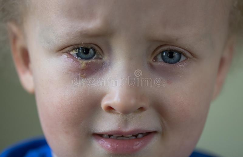 Sad and crying child with purulent conjunctivitis, contagious eye infection. Symptoms and treatment concept. Close up royalty free stock photos