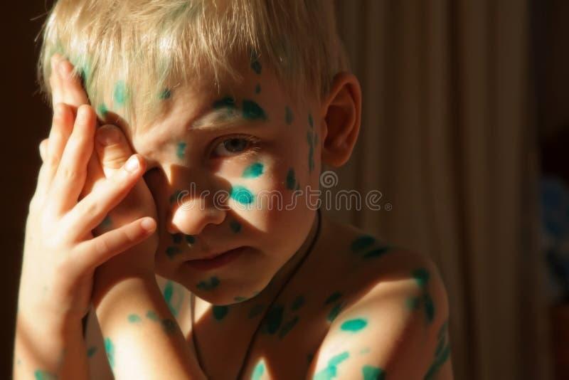 Sad sick boy royalty free stock photo