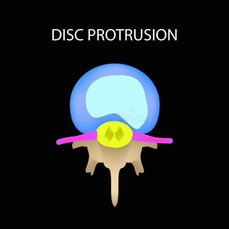 Saillie de disque Vue supérieure épine Infographie Illustration de vecteur sur un fond noir illustration stock