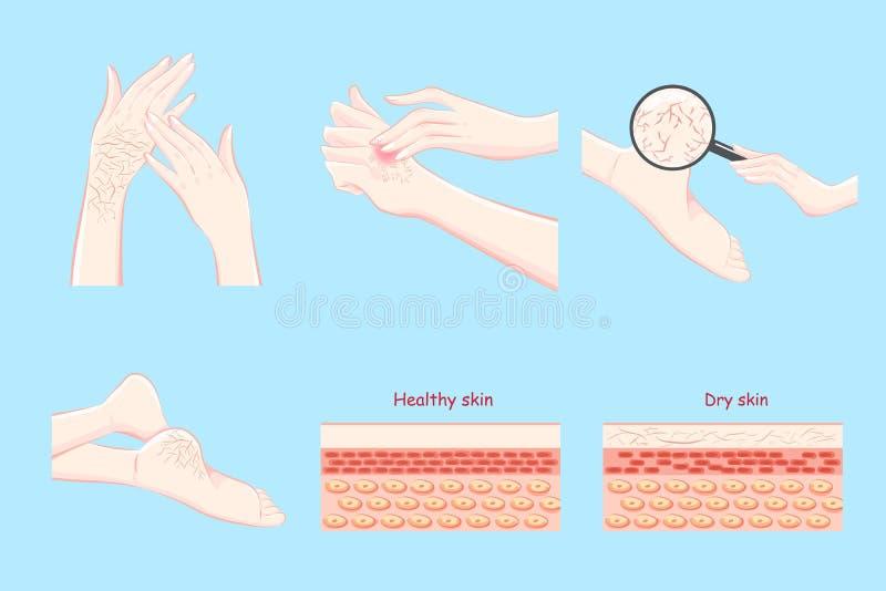 Sain avec le concept de peau sèche illustration libre de droits