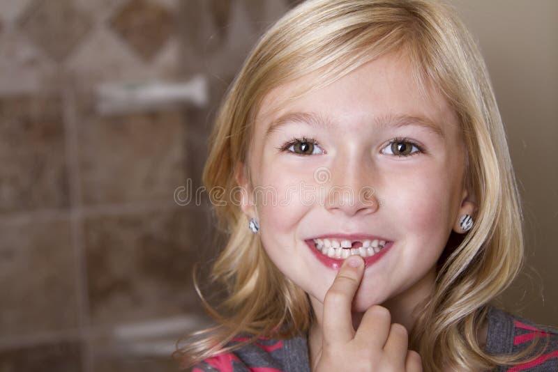 Saknad framtand för barn royaltyfri fotografi
