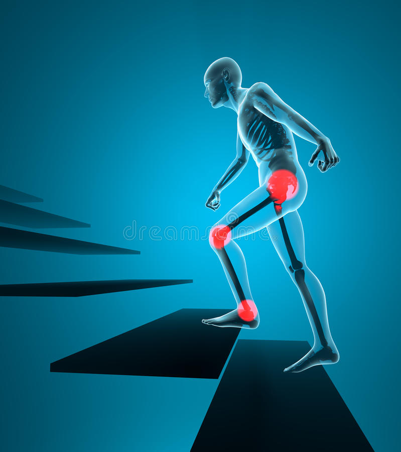 Salita dell'uomo di dolori articolari la vista dei raggi x delle scale illustrazione di stock