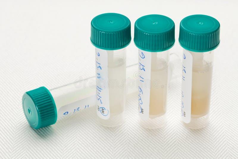 Salivaprövkopior för laboratoriumprov arkivbild