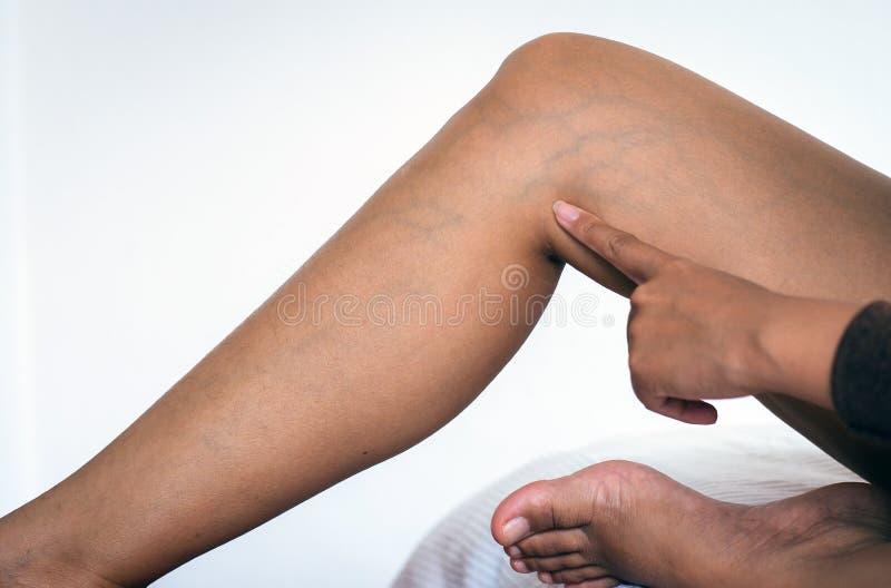 Salute della pelle di concetto, primo piano delle vene varicose sulle gambe della donna fotografie stock libere da diritti