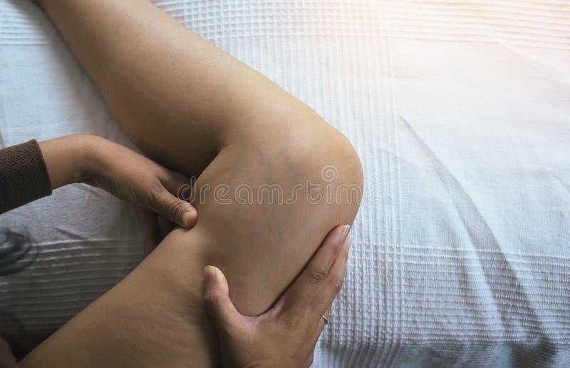 Salute della pelle di concetto, primo piano di, vene varicose sulla gamba della donna immagini stock