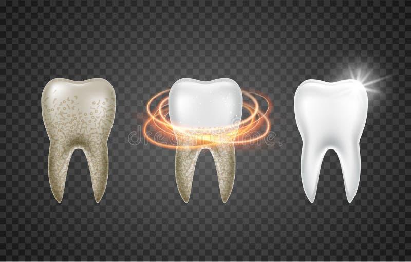Salute pulita 3d del dente Imbiancatura sporca realistica dentaria Modello della medicina di igiene dei denti del dentista royalty illustrazione gratis