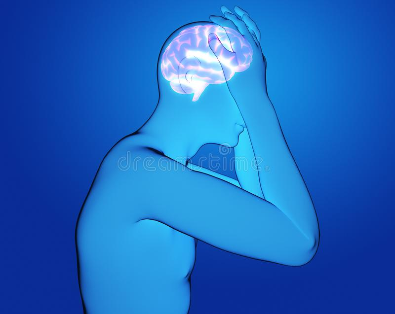 Samiec ma migreny 3d renderingu ilustrację royalty ilustracja