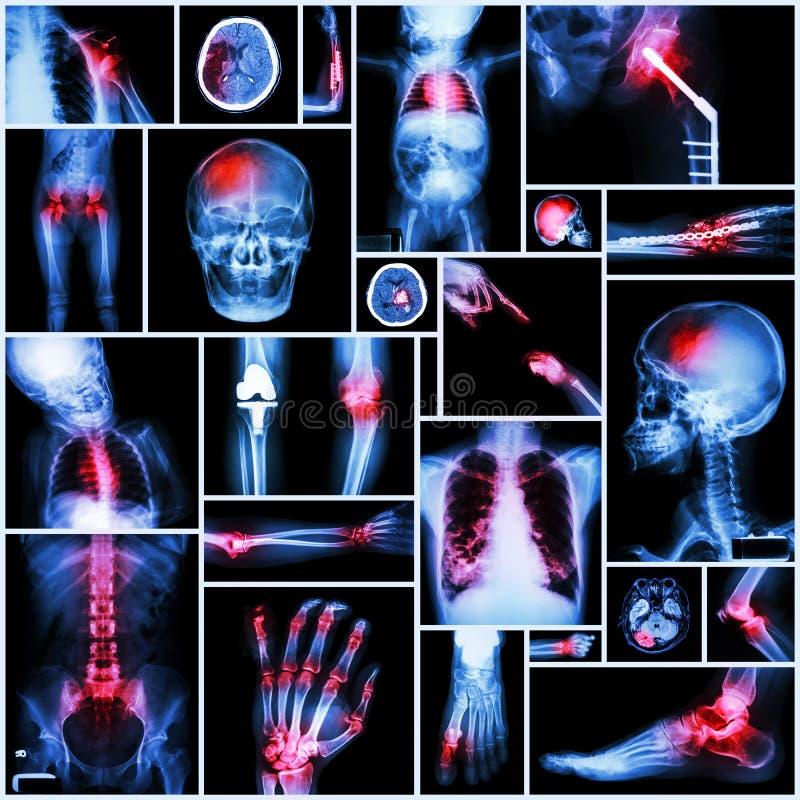 Samling av den åtskilliga delen för röntgenstråle av människan, den ortopediska operationen och multipelsjukdomen (skuldraförskju arkivbilder