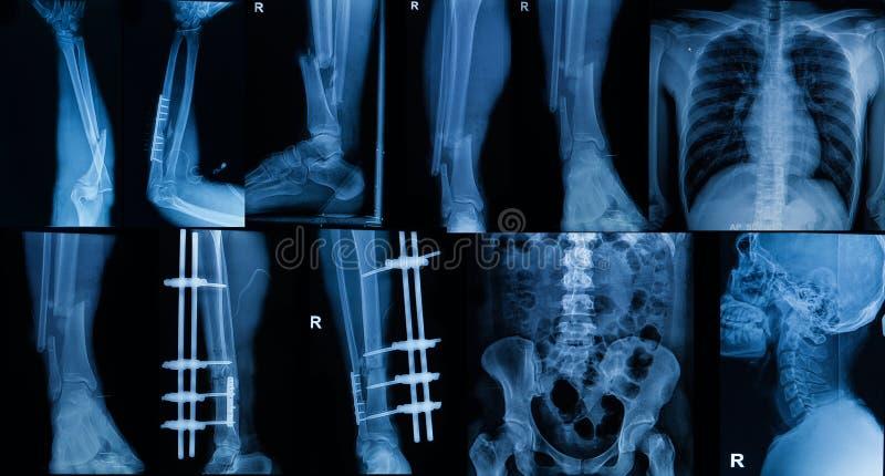 Samling av röntgenstrålen, åtskillig del av den vuxna showbrottbonen arkivbild