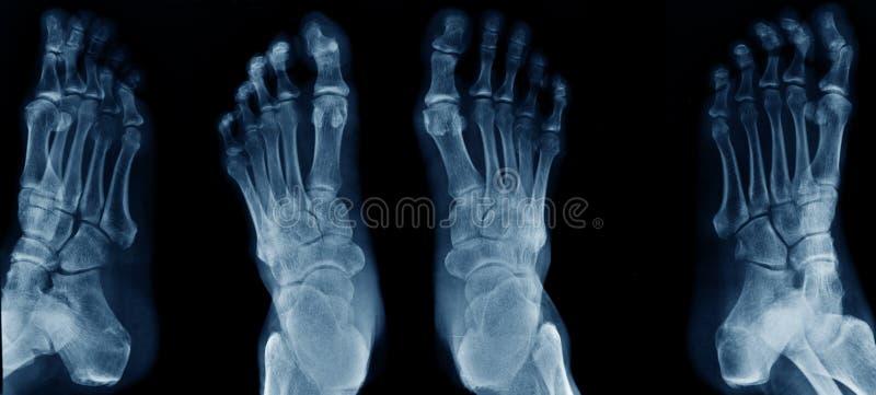 Samlingsfotröntgenstråle arkivbilder